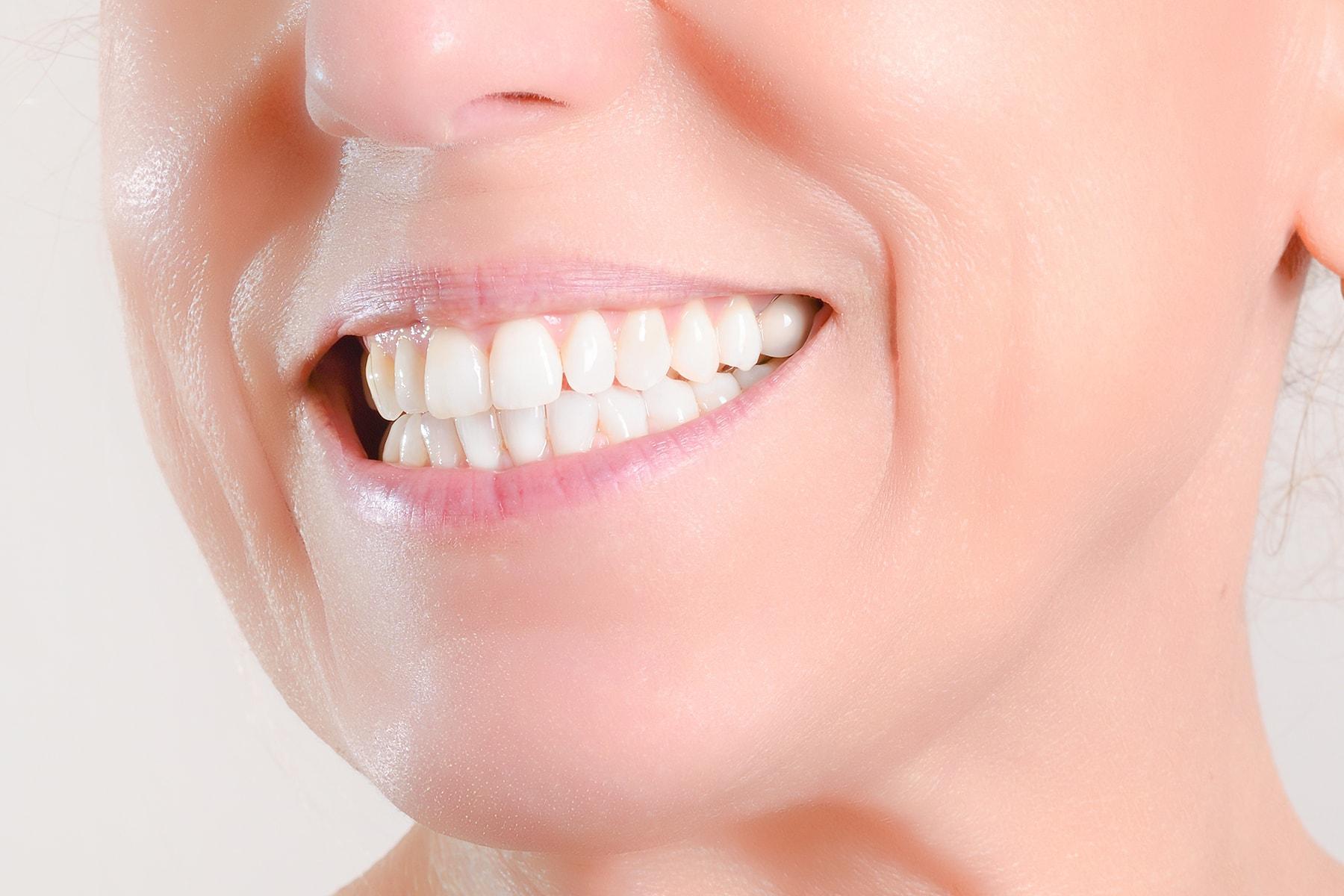 mini implant dentures