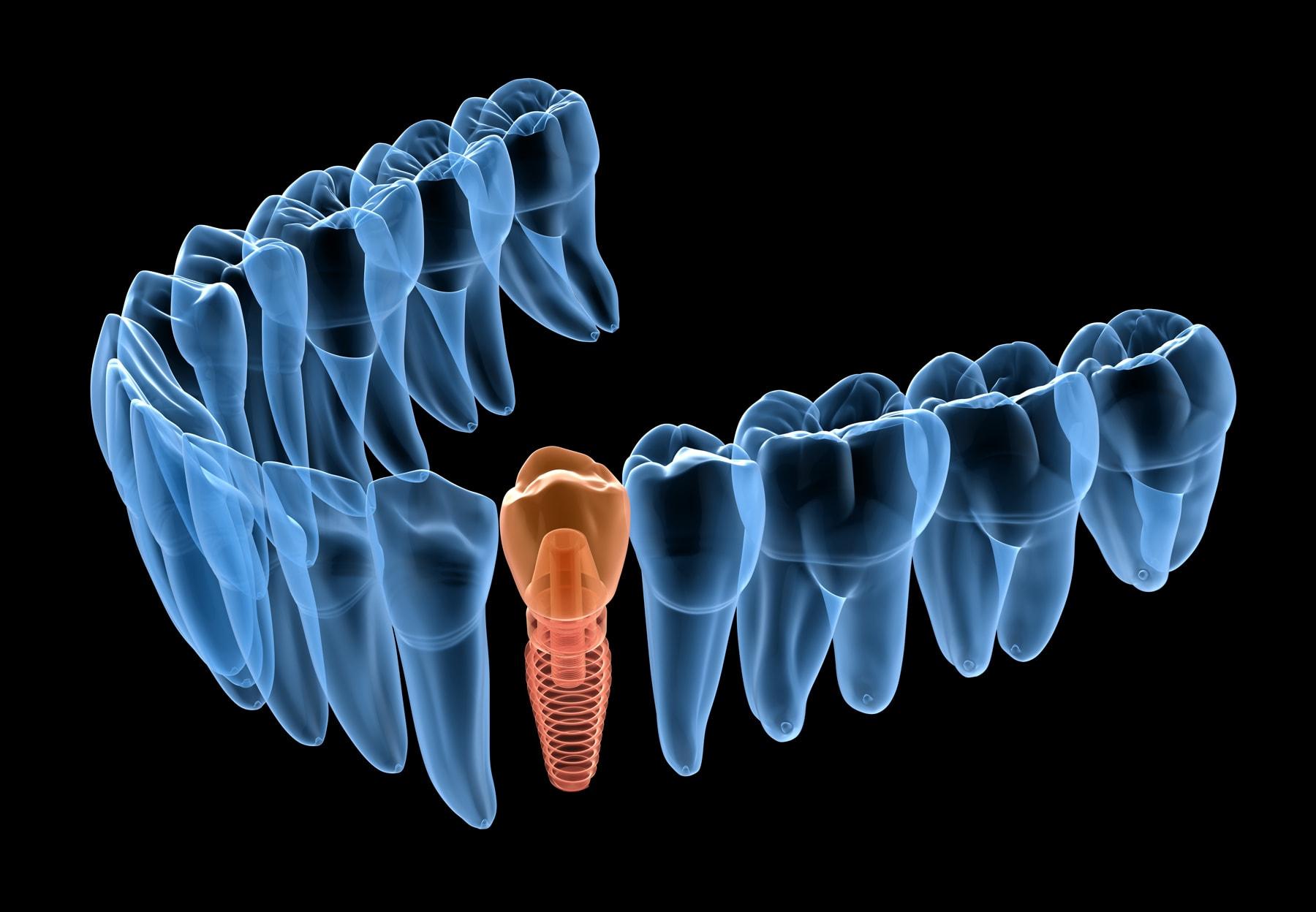 Broken molar tooth