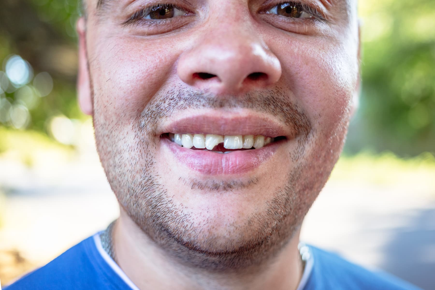 Chipped tooth front