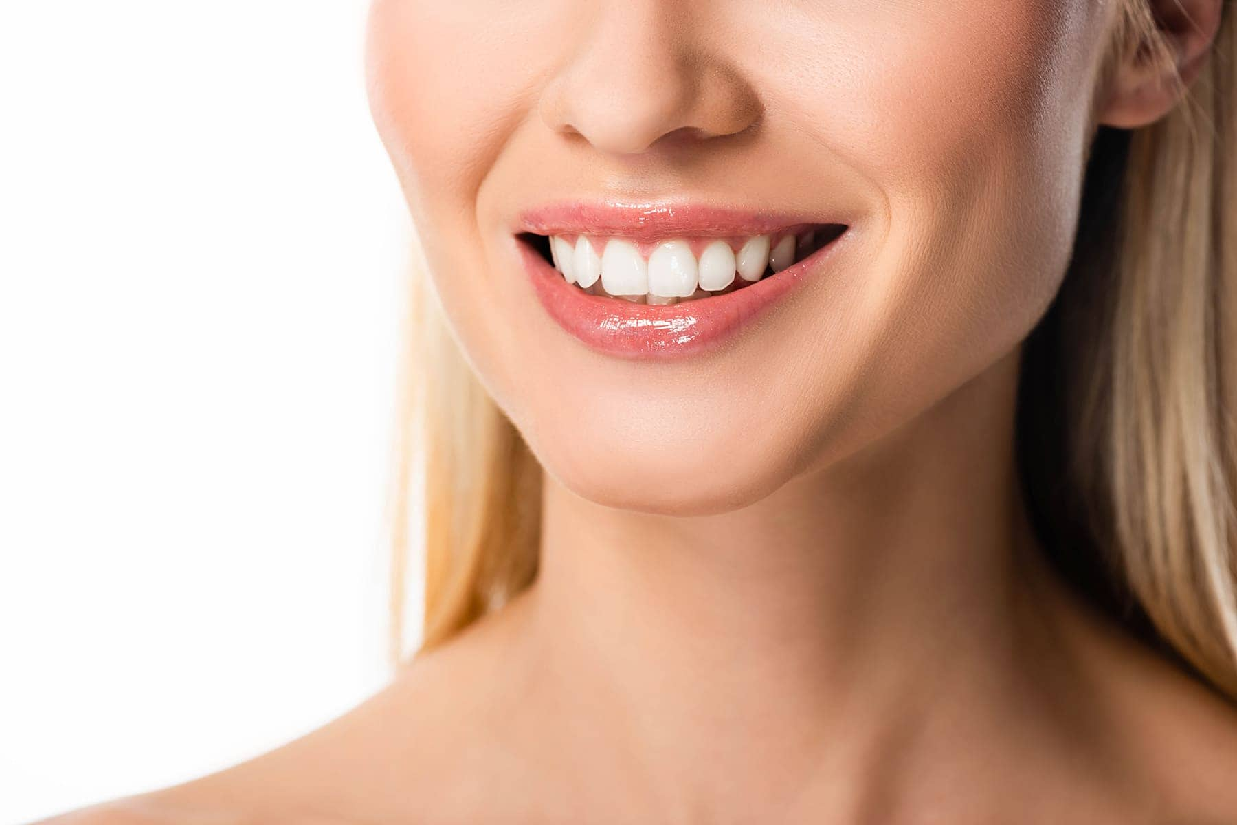 The Complete Guide to Getting Veneers [Updated for 5]