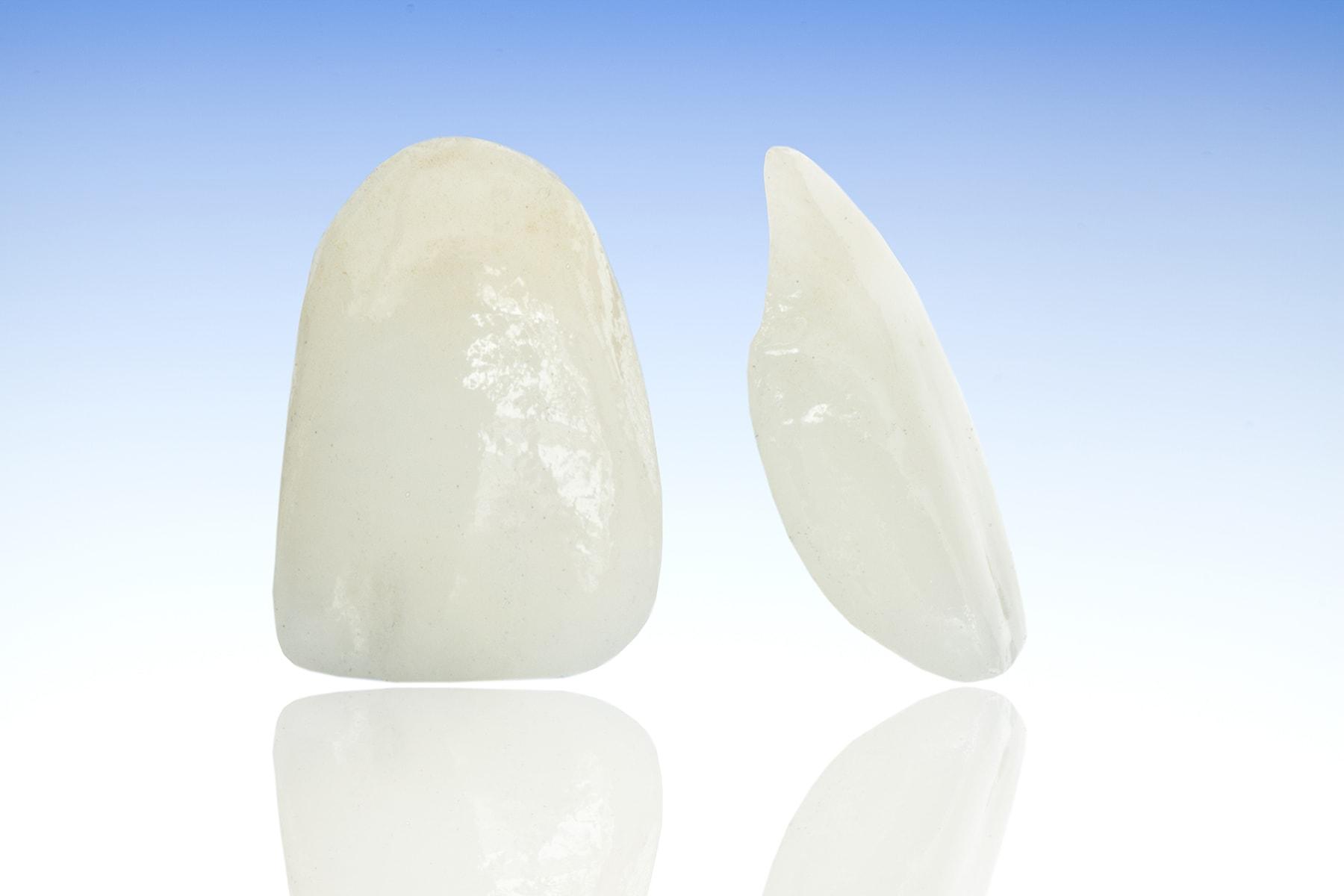 veneer teeth