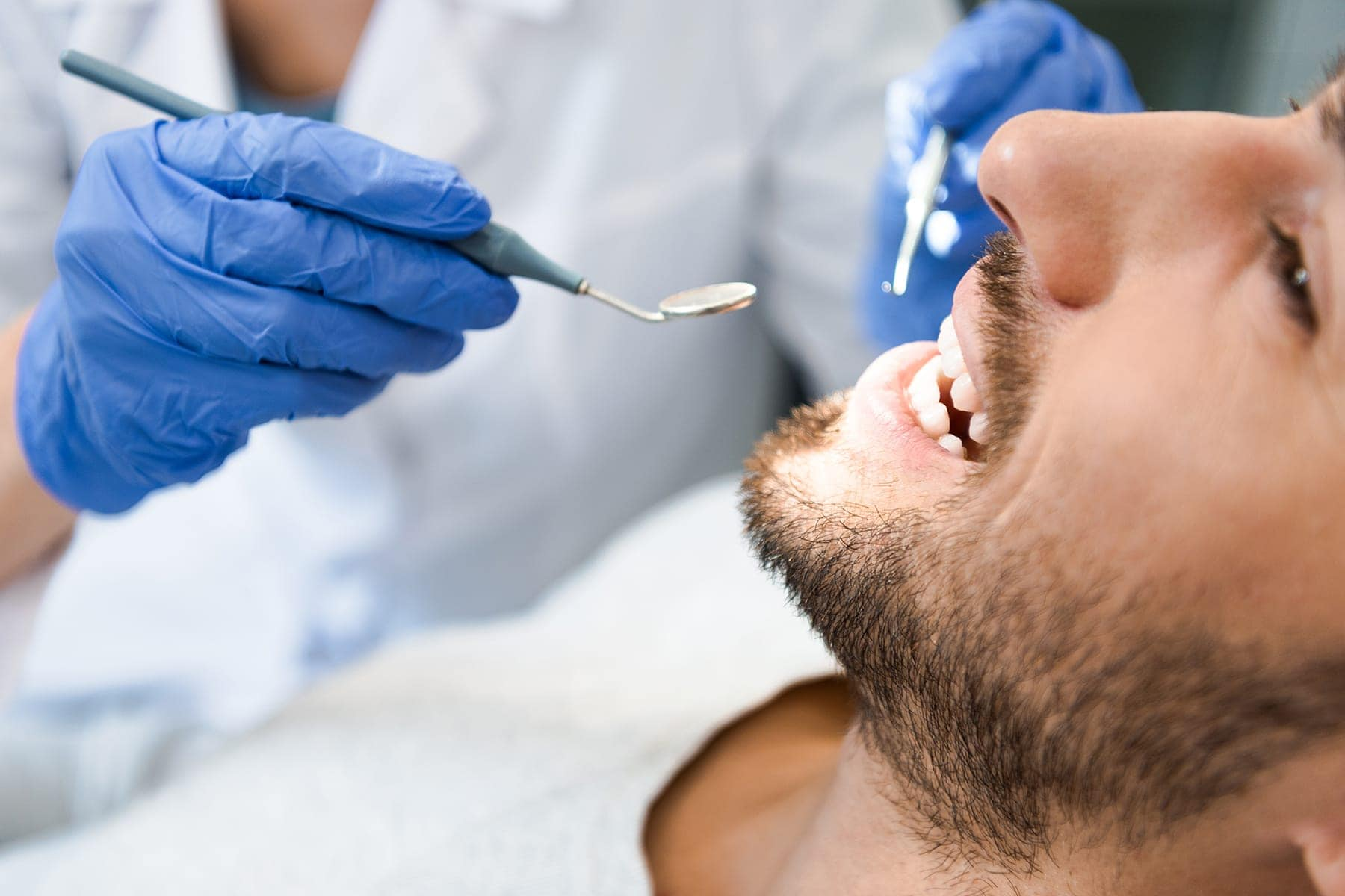 veneers for teeth