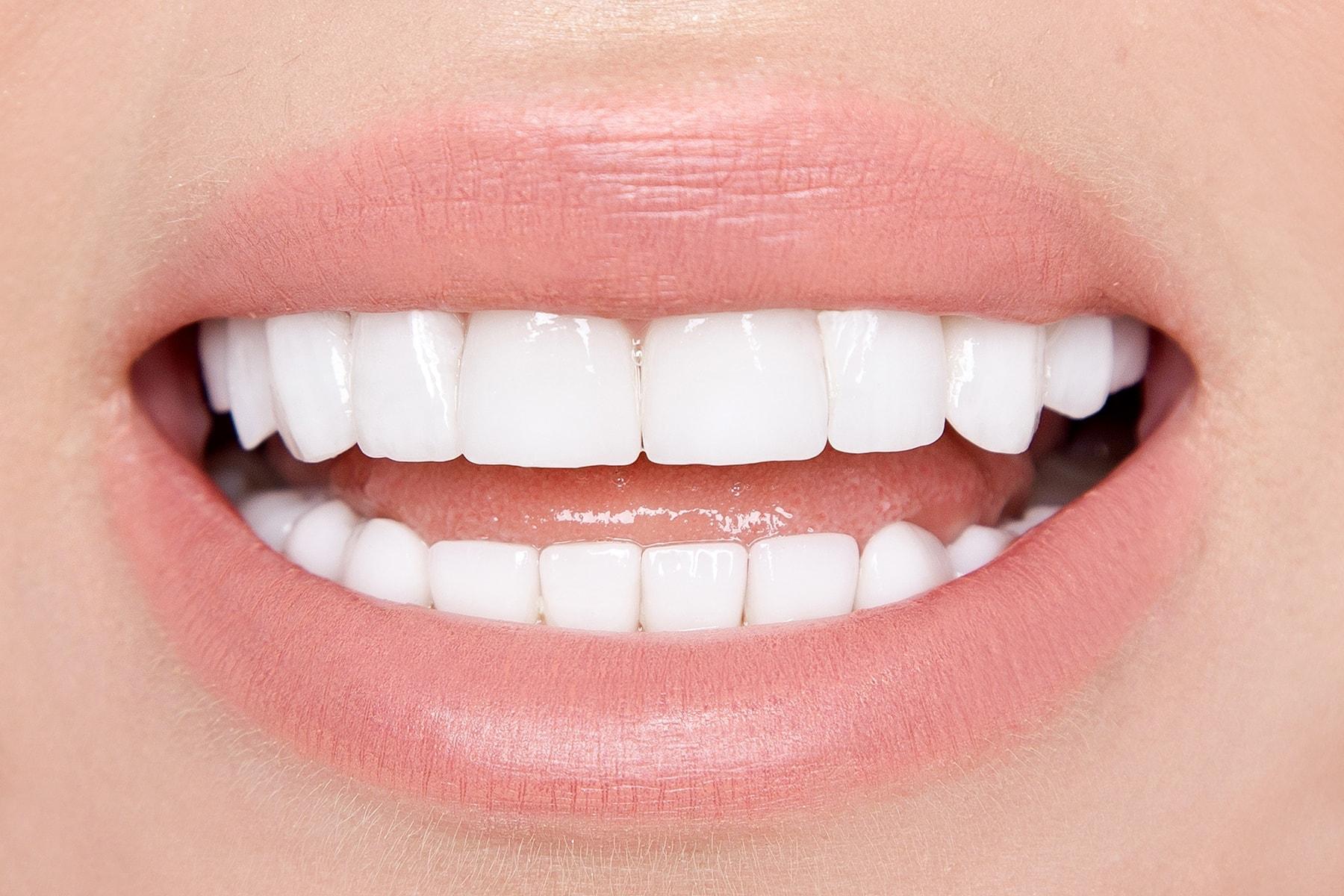 what is a veneer tooth