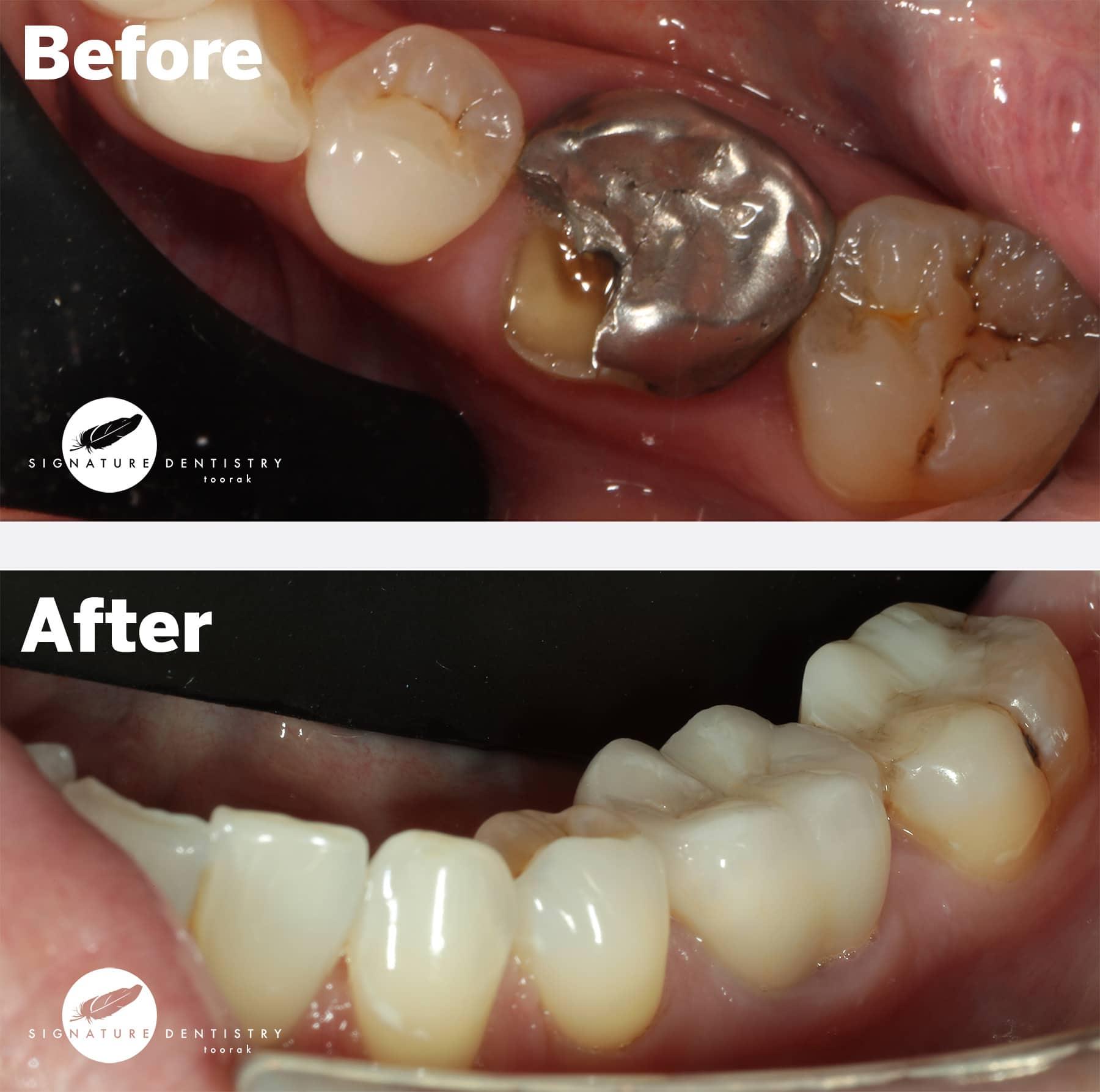 dental crowns melbourne